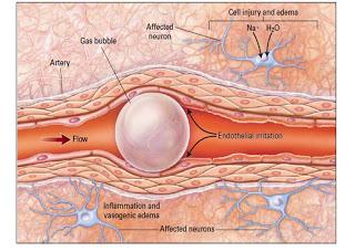 Efek dan Bahaya Perubahan Tekanan pada Tubuh 14